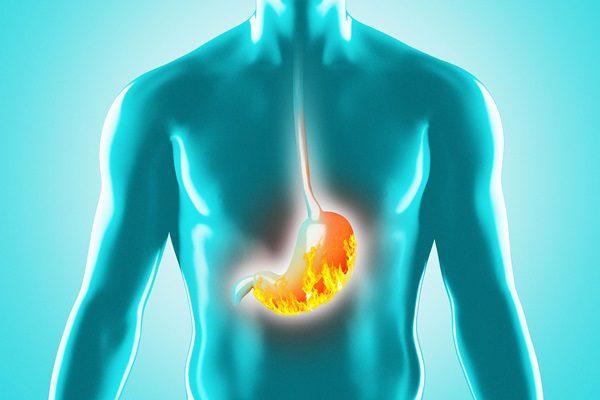 Reflusso gastroesofageo:  come curarlo con la chinesiologia e l'erboristeria
